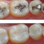 Concerns Over Amalgam Safety
